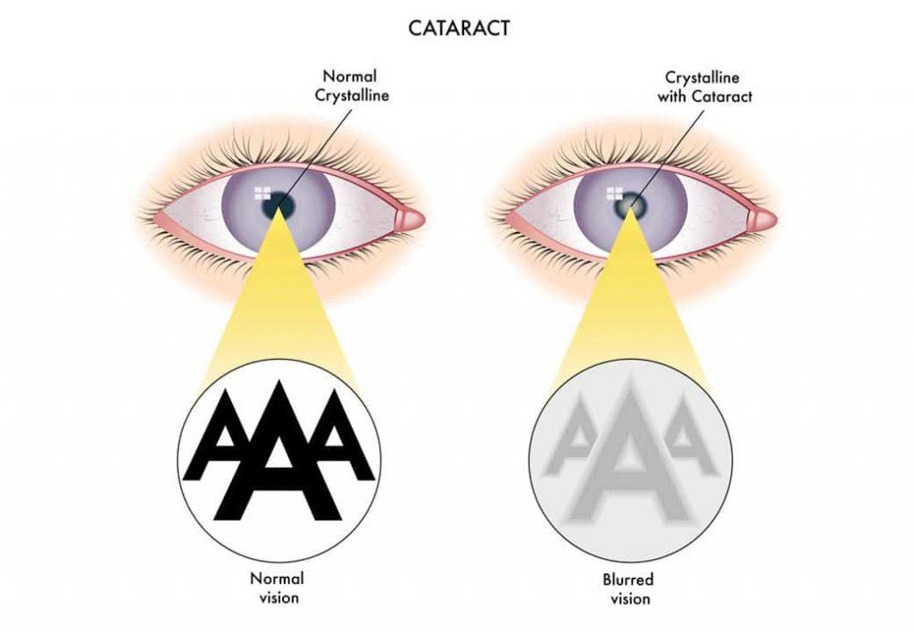 Cataract: An Age-Related Eye Disease