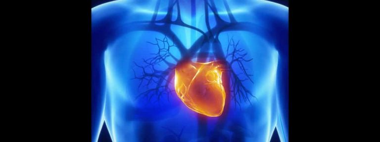 Sudden Cardiac Arrest: A Silent Killer